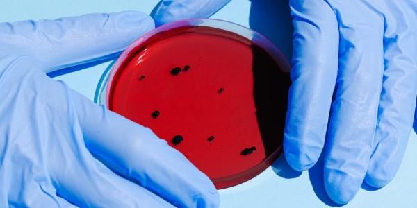 Boite de Pétri et culture de micro-organismes